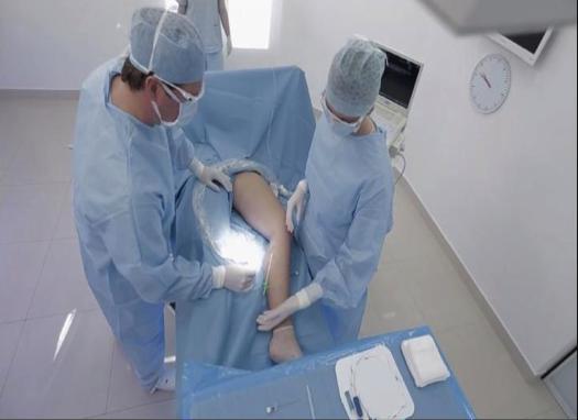 corecție laser cu varicoză)
